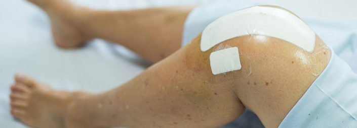 Knee Replacement Surgery for Arthritis