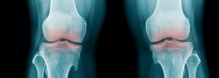 Bone Spur - Topic Overview