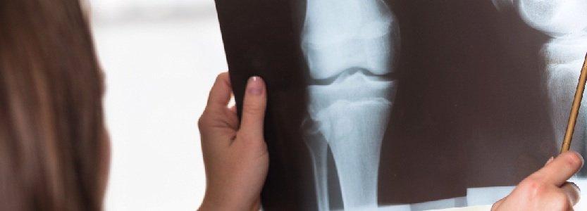 orthopaedic doctors, albuquerque