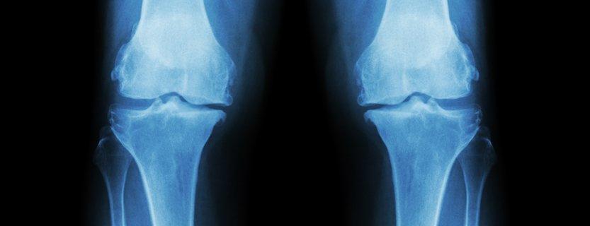best, orthopaedic, doctor, albuquerque