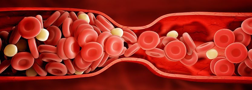 What Does It Feel Like When You Have a Blood Clot?