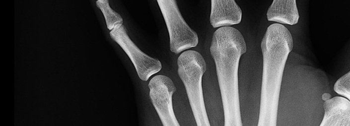 Coaxing' stem cells to form new bone tissue