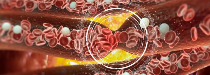 Blood Clot Symptoms: How to Tell if You Have One