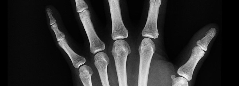 Bone health: Tips to keep your bones healthy