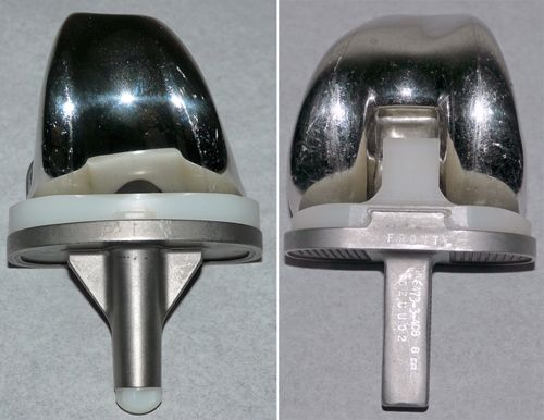 Total knee implants