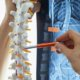 Artificial Disk Replacement in the Lumbar Spine