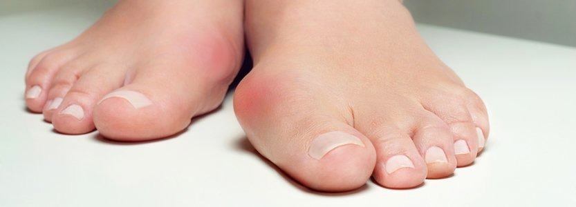 Do you need bunion surgery