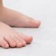 Flexible Flatfoot in Children