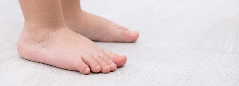 Flexible Flatfoot in Children