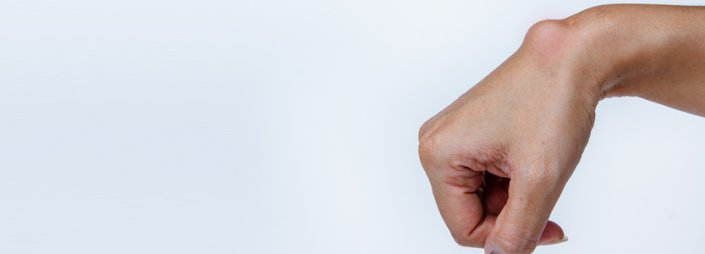 Frequently Asked Questions About Ganglion Cysts