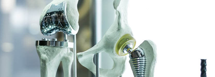 What to Expect After a Hip Replacement