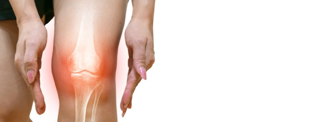Knee Osteoarthritis: Overview - New Mexico Orthopaedic Associates, P.C