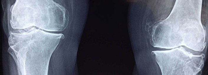 Frequently Asked Questions about Knee Pain