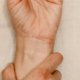 Most Common Hand and Wrist Injuries