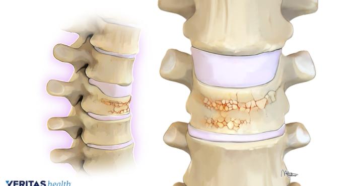 Chronic Pain, Osteoporosis, and Bone Density Testing