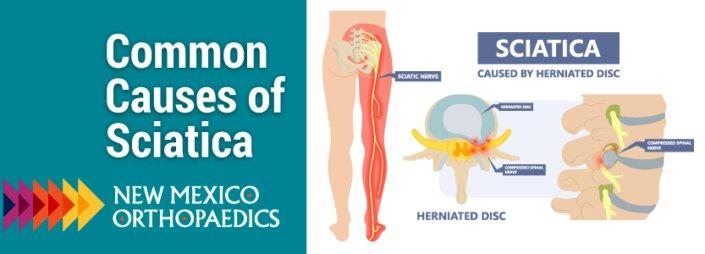 Common Causes of Sciatica